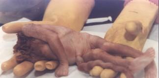 تسجيل أزيد من 112 ألف حالة إجهاض بإسبانيا سنة 2012م
