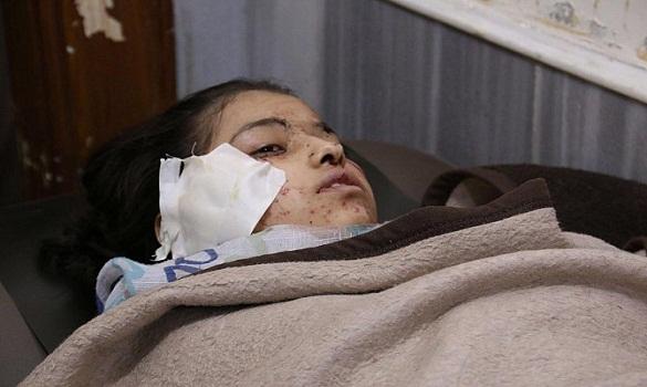 مجزرة مروعة.. مقتل 30 طفلاً في قصف استهدف مدرسة بحلب