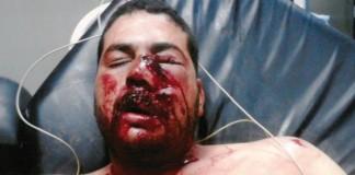 المغرب يطالب بتحقيق دولي في حادثة إطلاق النار على الحدود مع الجزائر