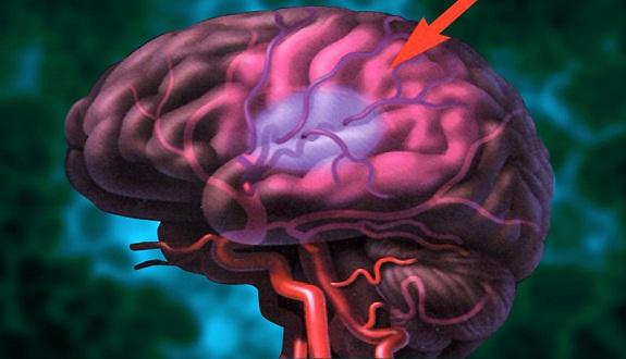 تحذير... هكذا تحدث الجلطة الدماغية!!