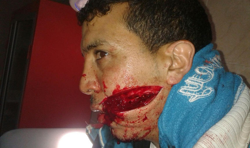 مجرم خطير يلقب بـ«الوحش» يروع ساكنة سلا العتيقة وضحاياه بجروح مروعة