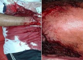اعتداء مسلح خطير على مسن بحي القرية بمدينة سلا بعد محاولته إنقاذ فتاة تتعرض للكريساج