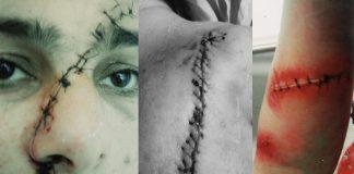 اعتداء خطير تعرضت له سيدة منذ شهرين ولازالت تتقاذفها مقرات الشرطة دون أن تأخذ حقها