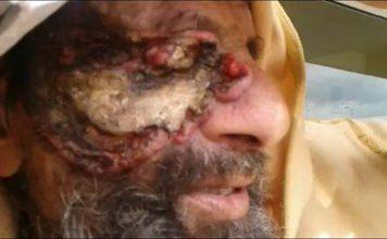 حصري بالفيديو: مستشفى الرباط يهمل ستينيا من وزان فقد عينه والأخير يعتصم بالباب