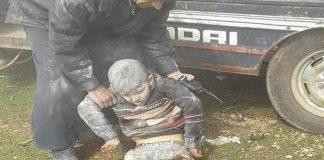 فيديو مؤلم جدا.. طفل سوري بترت قدماه يصيح ''يا بابا شيلني''