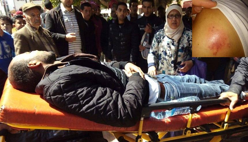 تدخل أمني عنيف اليوم في حق الأساتذة المرسبين في ساحة البريد بالرباط
