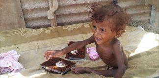 الصحة العالمية تحذر من تفاقم جديد لوباء الكوليرا في اليمن