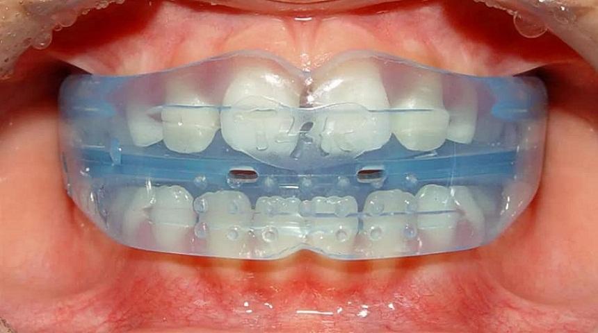 د. حسناء الكتاني تجيب عن سؤال: في أي سن يمكن البدء بتقويم الأسنان؟