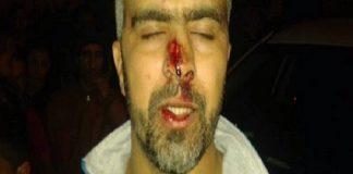 """مدير """"ريحانة بريس"""" يتعرض لمحاولة ذبح بساطور على يد تاجر مخدرات بالرباط"""