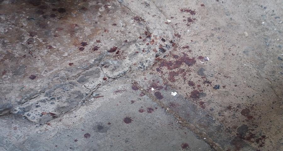 بالصور.. مجرم خطير يتسبب في جرح غائر على مستوى الوجه لشاب في الجولان بسيدي موسى سلا