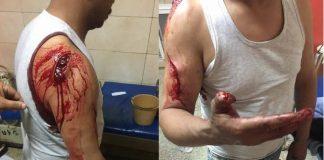 صور فظيعة لاعتداء همجي لمجرمين على حارس ليلي بحي القرية بمدينة سلا