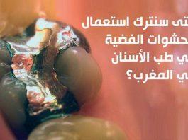 متى سنترك استعمال الحشوات الفضية في طب الأسنان في المغرب؟