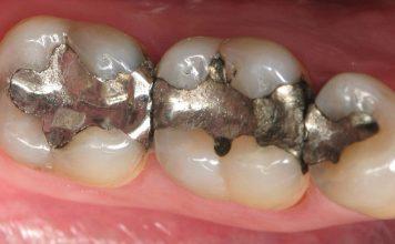 خطير: 42% من أطباء الأسنان يتخلصون من نفايات الزئبق بمطارح الأزبال