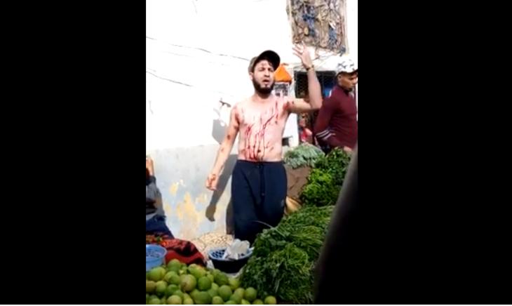 فيديو خطير.. فراش يجرح جسمه جروحا خطيرة بموس حلاقة احتجاجا على التضييق