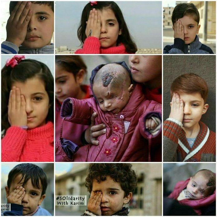 أطفال سوريون يتضامنون مع الرضيع كريم بعد أن فقد عينه وكسرت جمجمته واستشهدت والدته