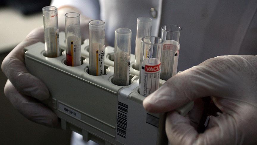 دراسة: مرض الكلى يزيد خطر الإصابة بالسكري