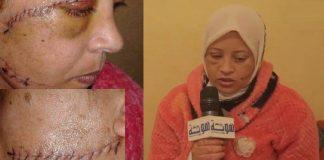 اعتقال الزوج الذي شرمل زوجته بسلا وخلف جروحا بـ33 غرزة في وجهها