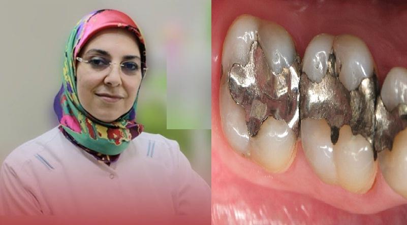 الدكتورة حسناء الكتاني تحذر من عدم احترام البروتوكول الحمائي لنزع حشوات الأسنان الفضية (الأملغم)