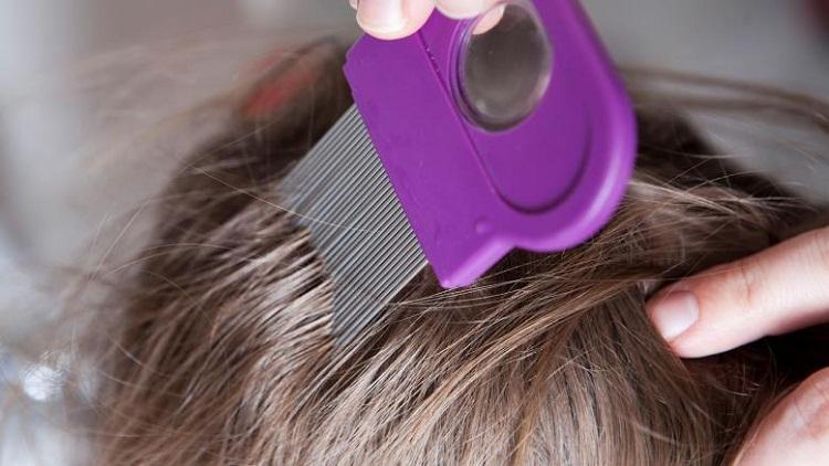 إليكسبب لا تتخيله لتساقط الشعر في الشتاءأسباب وعلاج تساقط الشعر بعد الولادة