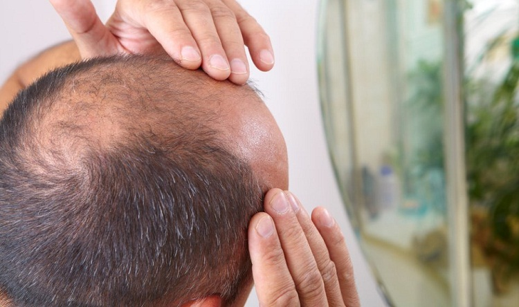 تلوث الهواء يقود إلى تساقط الشعر عند البشر