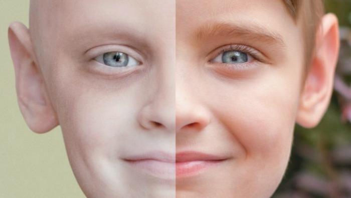 """علماء يتوصلون """"للصندوق الأسود"""" لأصل مرض السرطان"""